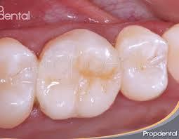 Dental Inlay Porcelain Inlays Onlays