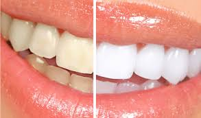 How to remove coffee stains from teeth. Common Foods And Drinks That Stain Teeth Disabled World