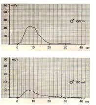 Presentation On Understanding Uroflowmetry