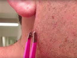 this ingrown hair isn t playing around joe gross you the insider summary ingrown hair removal