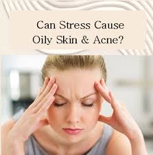 what causes acne and oily skin