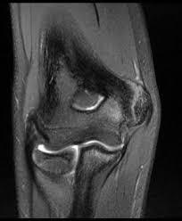 <b>Little</b> League <b>Elbow</b> - Shoulder & <b>Elbow</b> - Orthobullets