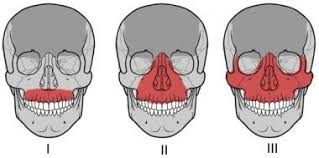 Le Fort Fracture Initial Evaluation And Management Of Maxillofacial Injuries