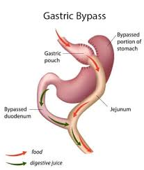 after gastric byp the gastric pouch can enlarge naturally or as a result of overeating using the tore technique surgeons are able to suture the