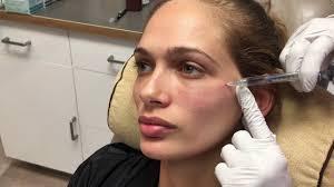 tear trough under eye treatment with juvederm voluma and restylane