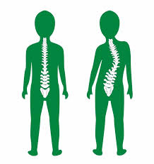 Scoliosis - Pediatric Orthopedics - IBJI