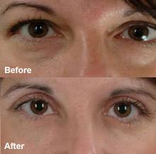 you can remove dark circles around your eyes