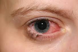 mata bayi merah sebelah, mata anak merah, anak sakit mata, konjunktivitis, mata berair, mata sakit, mata gatal, ketuat