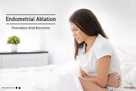 endometrial ablation procedure and recovery