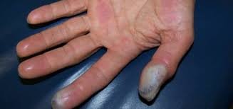Hydrofluoric Acid Burn Sinaiem