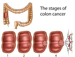 Colon Polyp Size Chart Prevention Of Colon Polyps And Cancer Jackson Siegelbaum