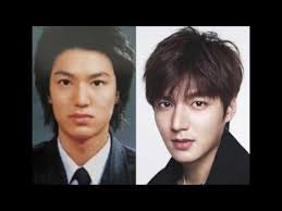 top 10 list famous korean actors before and after plastic surgery