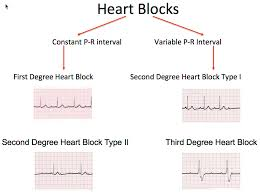Types Of Arrhythmia Chart 316 Heart Block Dysrhythmias