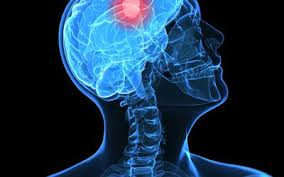 Image result for Main Types of Brain Tumor: Benign & Malignant picture
