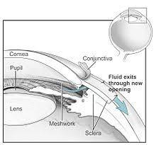Glaucoma Wikipedia
