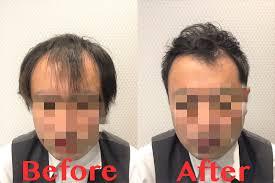 薄毛が目立たない髪形とは薄毛専門美容室が提案するヘアスタイルのご紹介