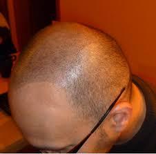 Tetování Vlasů Headstyle Fotoalbum 21