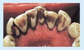Картинки по запросу зуби