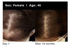 women hair loss treatment before after grandio 2018