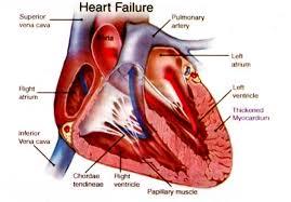 Obat Yang Dapat Menyembuhkan Penyakit Jantung