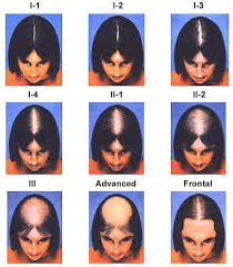 using the savin scale women are able to better describe their level of hair loss and overall thinning it s important to have a standard merement used