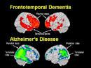 FTD - Frontotempora dementia