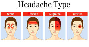 cluster headache location chart primary headache arşivleri types of headaches types of