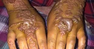 Místo Tetování Ruce Plné Puchýřů Sophie 22 Varuje Před černou