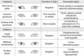 Image Result For Pupil Size Chart Optometry School Eye
