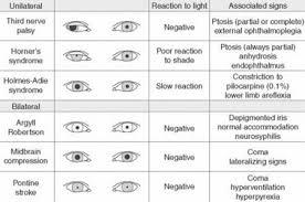 Normal Pupil Size Chart Eye Pupil Size Chart Buurtsite Net