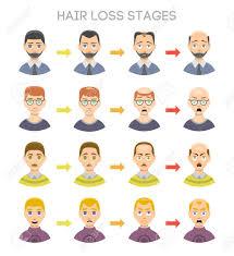 毛損失ステージと男性の頭の上示されている脱毛症の種類の情報のグラフ医療健康問題はげ段階頭皮髪型は