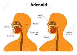 Adenoid Side View To Show The Position Of The Adenoids The
