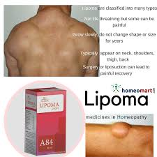 lipoma treatment and removal cines