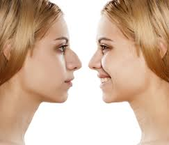 Nose Surgery in Dubai