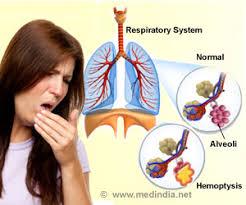 HEMOPTYSİS ile ilgili görsel sonucu
