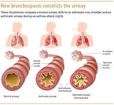 Asthma Pathophysiology Flow Chart Understanding Asthma Pathophysiology Diagnosis And