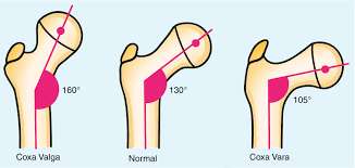 Coxa Vara Coxa Vara In Osteogenesis Imperfecta Springerlink