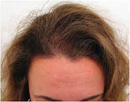 Female Pattern Hair Loss Enchanting How To Treat Female Pattern Hair Loss