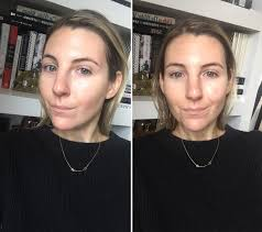 my bare face results after a hydra