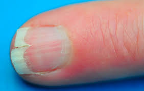 image of vertical ridges or lines on nails