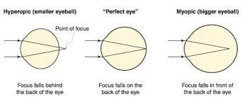 Nearsightedness Elgin Il