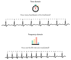 Ecg Rate Determination Chart Heart Rate Variability How To Analyze Ecg Data Imotions