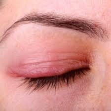 Eyelid infections | Health24