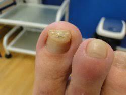 Pryč S Deformací Nehtů Dermatologická A Estetická Klinika Vzhled