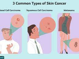 how skin cancer is treated