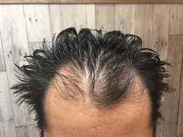 ショートヘア薄毛男子が美容院でハゲを軽減できるヘアスタイルの