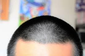 若ハゲの髪型m字禿げ頭頂部つむじハゲ画像付き徹底解説