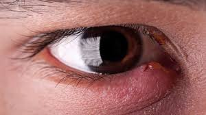 How to Get Rid of a Stye: 8 Home Remedies and Treatments