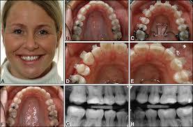 <b>Dental</b> health assessed after <b>interproximal enamel</b> reduction: Caries ...