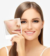 Image result for how to get rid of pimples